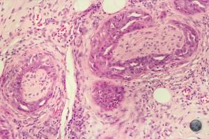 Adenocarcinoma - Perineural Invasion